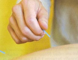 Acupuncture hui infertility